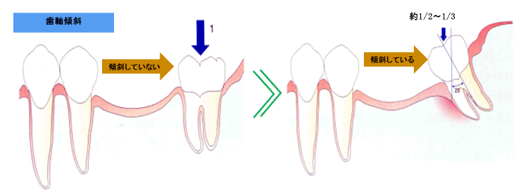 歯軸傾斜の影響