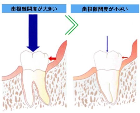 歯根の長さ