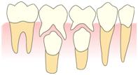 乳歯と歯並び