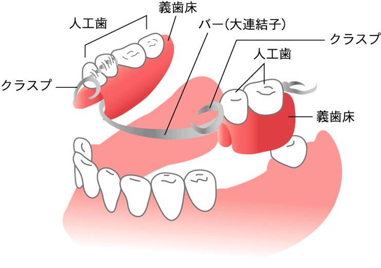 部分入れ歯(リムーバブル パーシャルデンチャー)