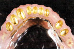 外冠を粘膜面に固定