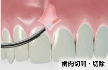 Er:YAG Laser(アーウィン アドベール)を導入出来る治療画像3