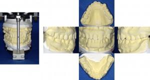 歯の模型 術前