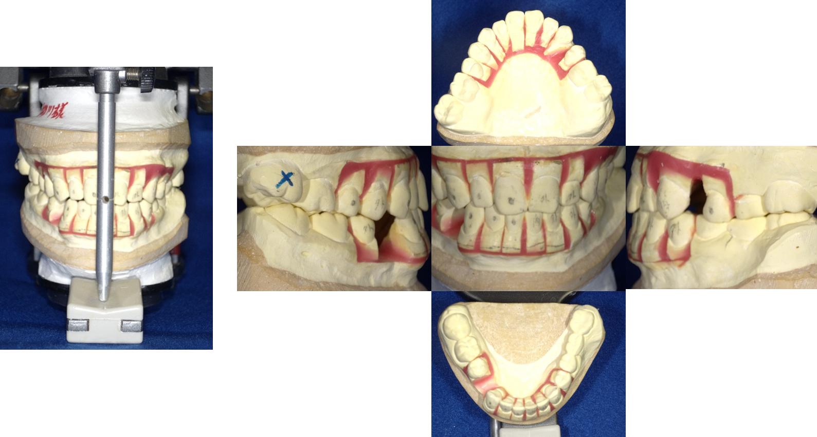 歯の模型 術後