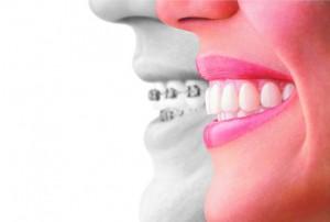 お口の中を清潔に保つことができ、トラブルが少ないことも特徴です。