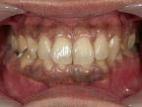 1.歯肉着色状態