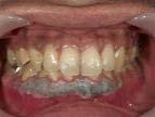 3.歯肉処置1日目