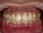4.歯肉処置4日後