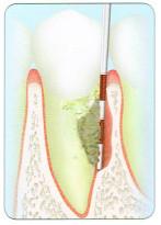 鋭く切れ込んだように歯槽骨が失われています。
