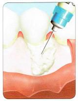 エナメル基質タンパクを欠損部に塗布します。