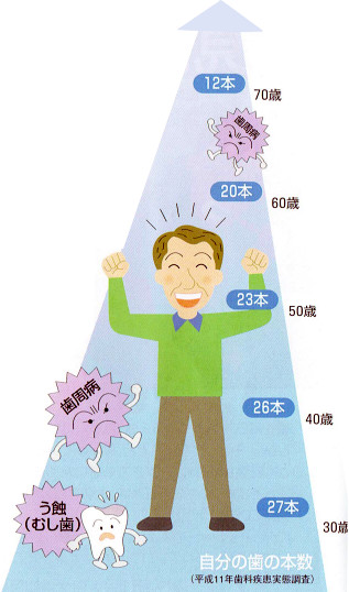 歯の寿命について