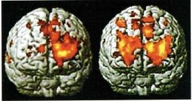 咬合と脳の関係