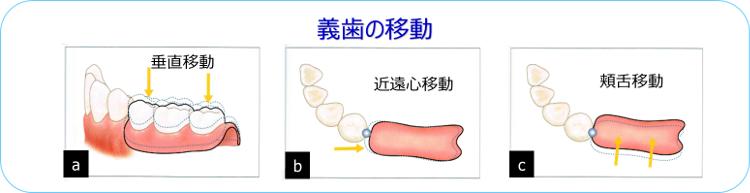 義歯の移動