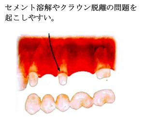 中間支台歯の負担