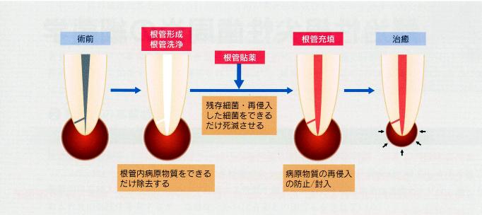 歯内療法の基本ステップ(根管形成、根管洗浄、根管貼薬、根管充填)