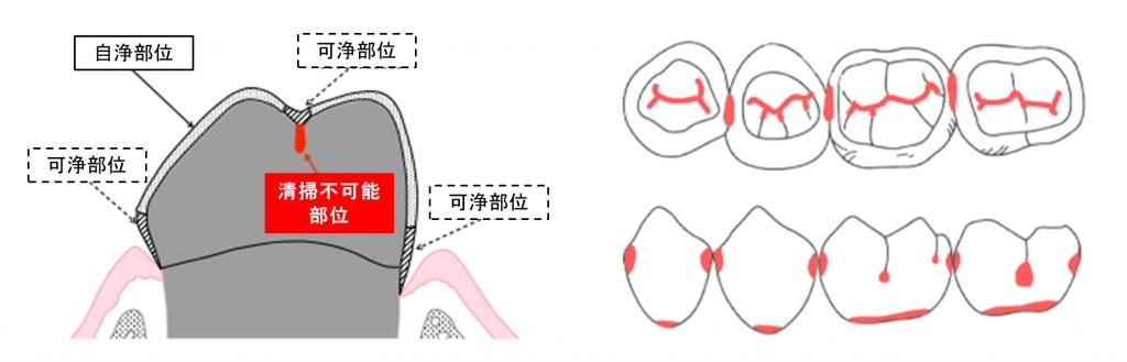 歯みがきの限界と日本人のむし歯好発部位