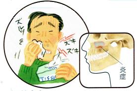 上顎洞性歯痛