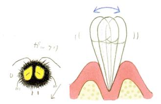 部分入れ歯時の注意1 歯がグラグラ