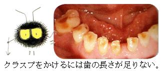 部分入れ歯時の注意3 歯が短い