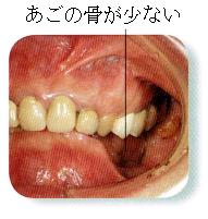 部分入れ歯時の注意6 あごの骨が少ない