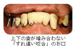 部分入れ歯時の注意7 噛み合う歯がない(すれ違い咬合)