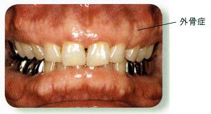 あごの骨(歯槽骨)が隆起