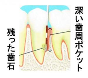 歯周外科治療の流れ1