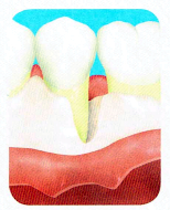 歯周外科治療の流れ3