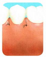 歯周外科治療の流れ4