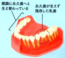 先天性欠如歯