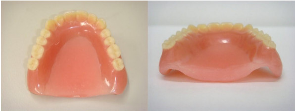 上顎義歯の口蓋部を肥厚させたPAPの写真