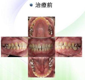 インビザライン症例(治療前)