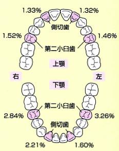 永久歯の先天性欠如:上下顎の発現率の割合が高い歯種を表した図