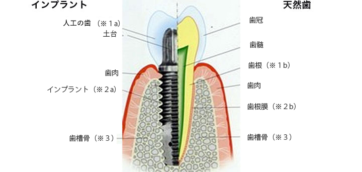 天然歯とインプラントの違い