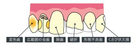 変色歯、広範囲の虫歯、隙歯、破折、形態不良歯、くさび状欠損