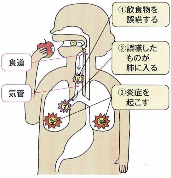 ①飲食物を誤嚥する、②誤嚥したものが肺に入る、③炎症を起こす