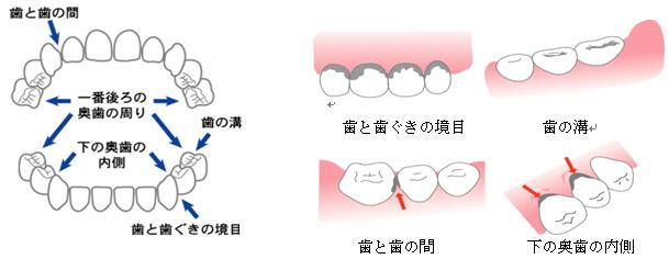 むし歯のできやすいところ