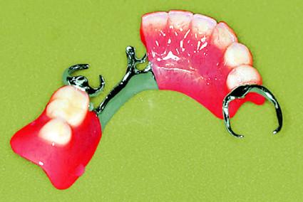 加藤式入れ歯(総入れ歯)