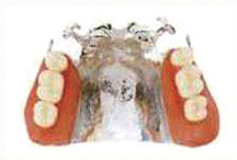 コバルト・クロム合金床義歯