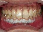 2.歯肉処置直後