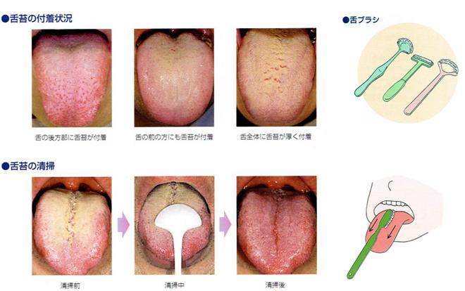 舌の清掃方法を教えてください。図