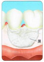 欠損部に移植材を入れて、膜でしっかりとおおい縫合します。