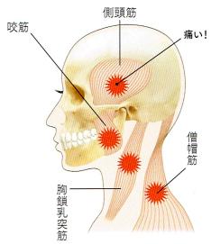 TMJのタイプ1 筋肉のトラブル