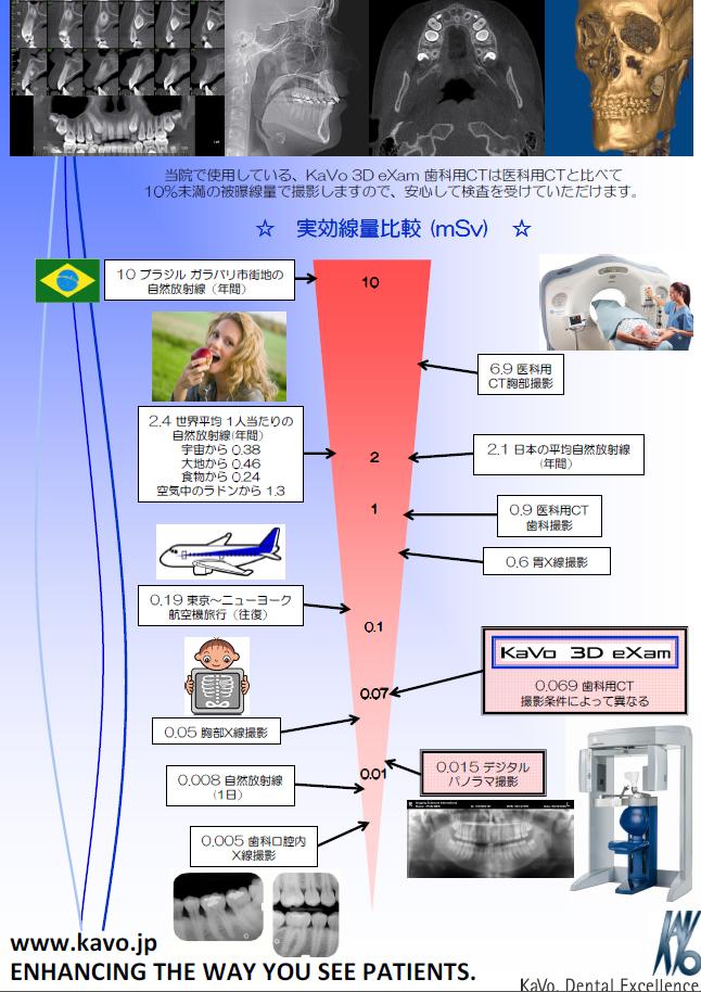 X線撮影CT機器「Kavo 3D eXam」とデジタル化