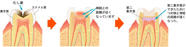 むし歯の進行と象牙質の関係