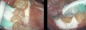 ソニッケアーの効果4 液体流動力