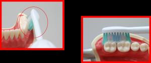 ソニッケアーの効果6 簡単に効率よくブラッシング
