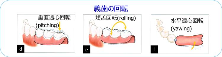 義歯の回転