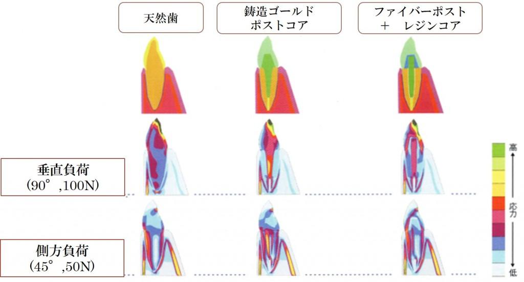 ファイバーポストの応力分布
