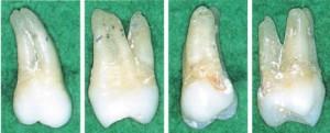 上顎大臼歯標本